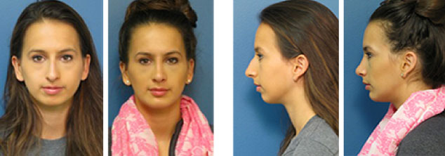 Stein Plastic Surgery Patient Photos