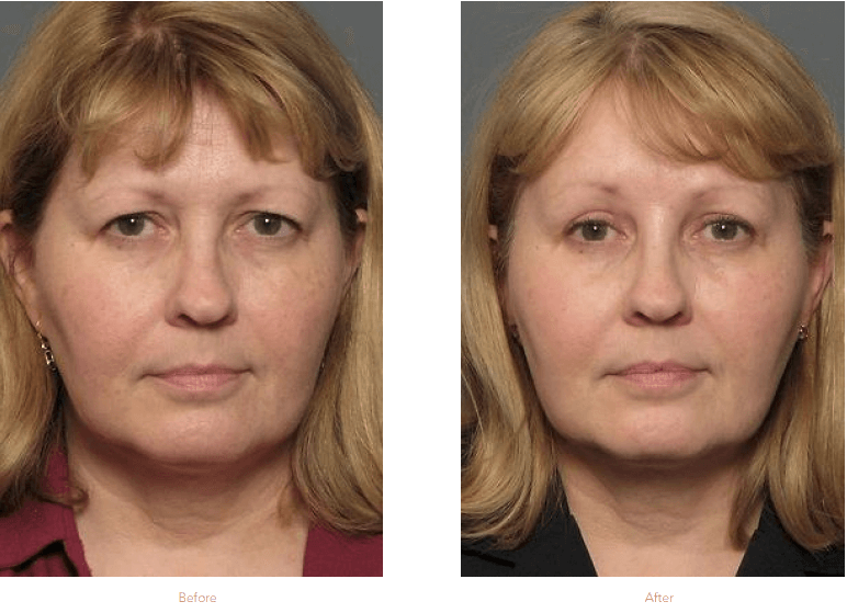 Eyelid Lift Surgery Before & After Raleigh & Durham, NC