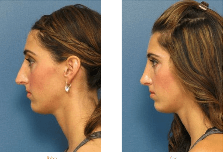 How Soon Can I Return To Work After A Rhinoplasty Raleigh Rhinoplasty Stein Plastic Surgery