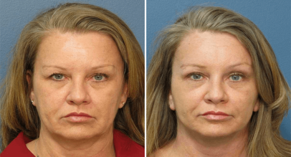 Lower Blepharoplasty Raleigh