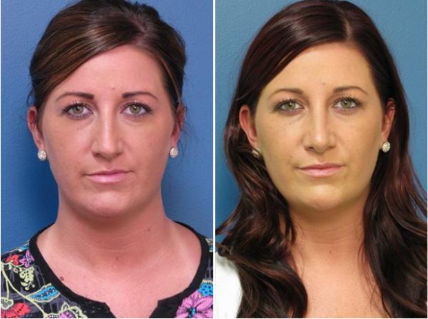 Rhinoplasty Raleigh