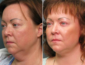 Chin Augmentation Raleigh
