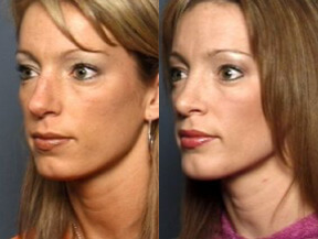 Raleigh Chin Augmentation