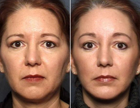 Raleigh Rhinoplasty