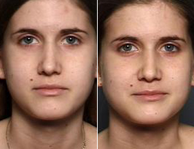 Surgery Rhinoplasty Raleigh, NC