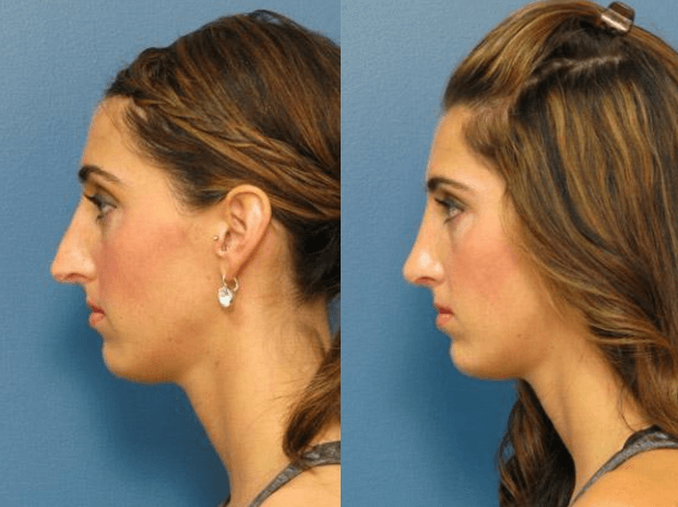 Closed Rhinoplasty Raleigh